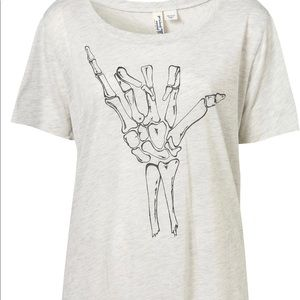 Sold Out in Stores! Project Social Hang Loose T